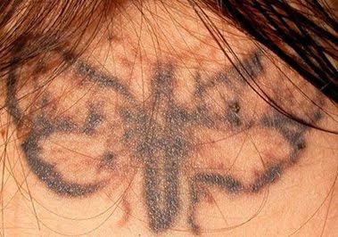 derma pricking tattoo removal