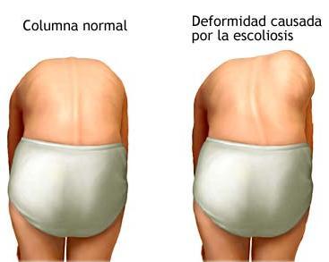 Zaschemlenie del nervio en la columna vertebral los síntomas el tratamiento