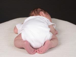 Foto TANDA PENDERITA Celebral Palsy Gambar Anak Bayi Sering Lemas