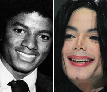 michael jackson before and after