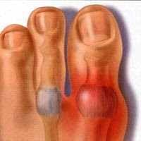 alimentos prohibidos en acido urico significado de acido urico en orina acido urico hinchazon pie