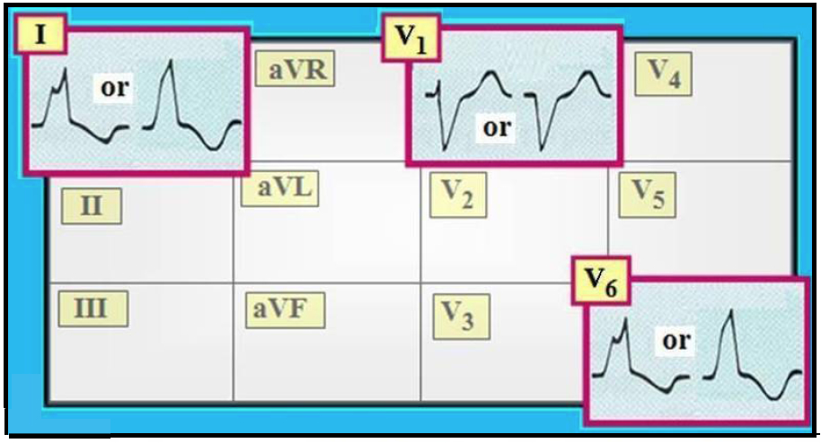 - ECG+Interpretation+Review+-+11+-+LBBB%252C+typical+QRS+morphology