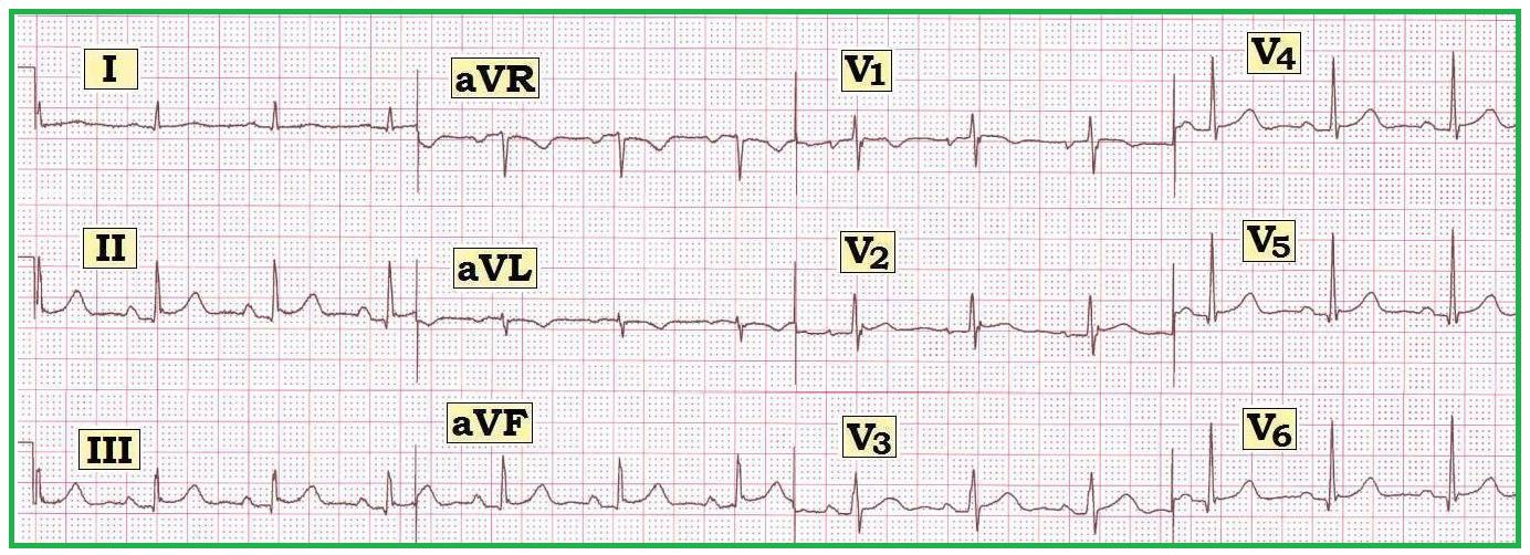ECG Interpretation: ECG Interpretation Review #12 (Computerized ECG ...