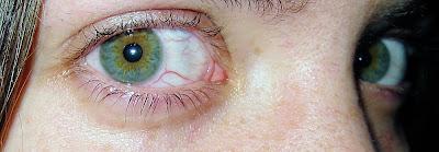 skaver i ögat när jag blundar