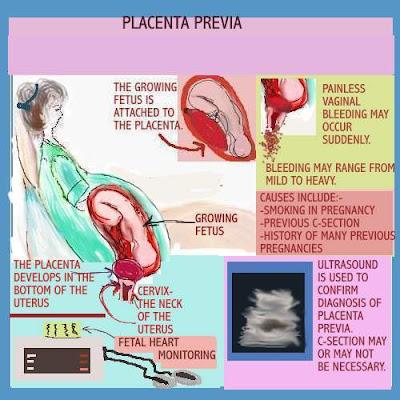 placenta pictures,placenta