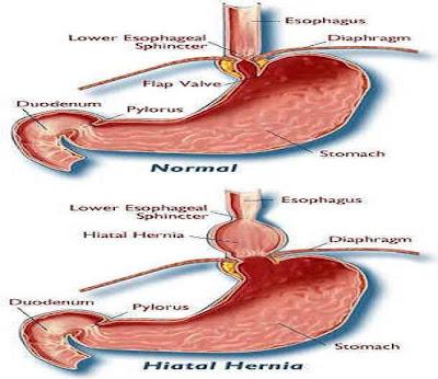 prevent hital hernia - heartburn through yoga, Sphenoid