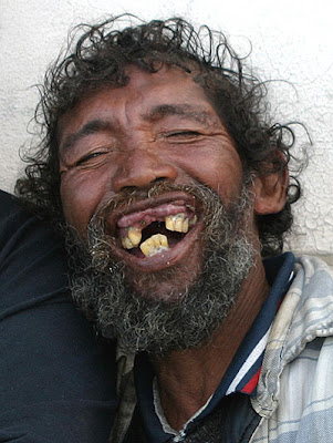 of man with bizarre set of missing teeth, perhaps due to tooth decay