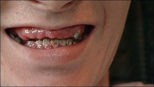 rotten teeth pictures, Human Body