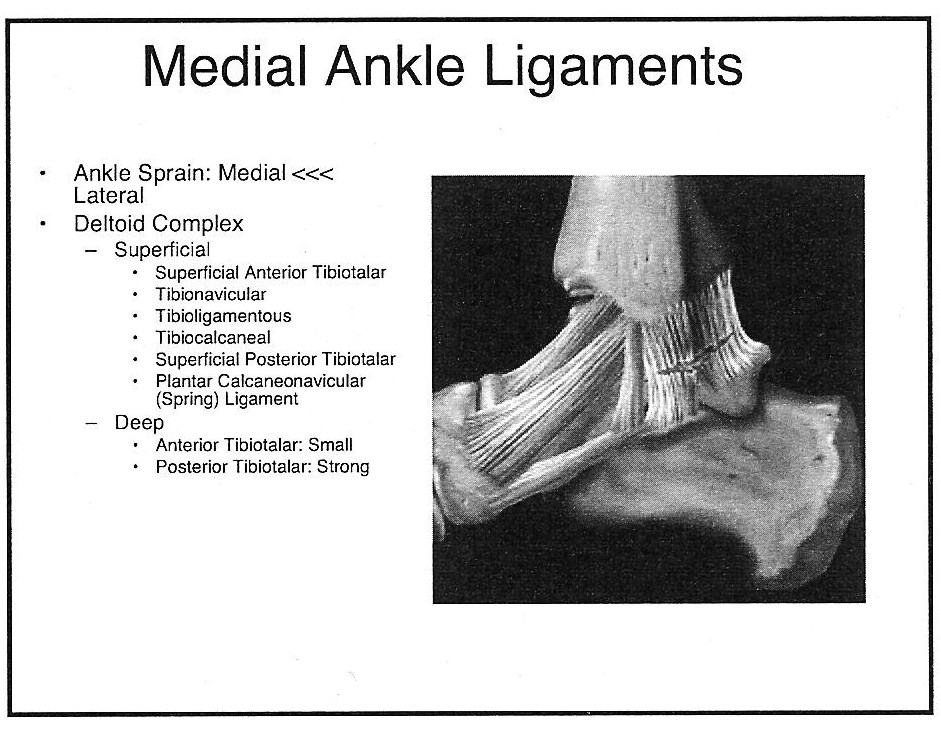 Radiology Cases: Lateral and Medial Ankle Ligaments