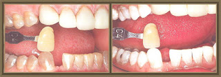 Pennsylvania Tooth Whitening