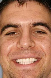 Akron Dentist