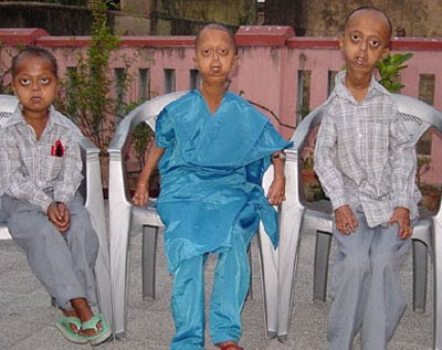 PROGERIA Research Foundation « PROGERIA