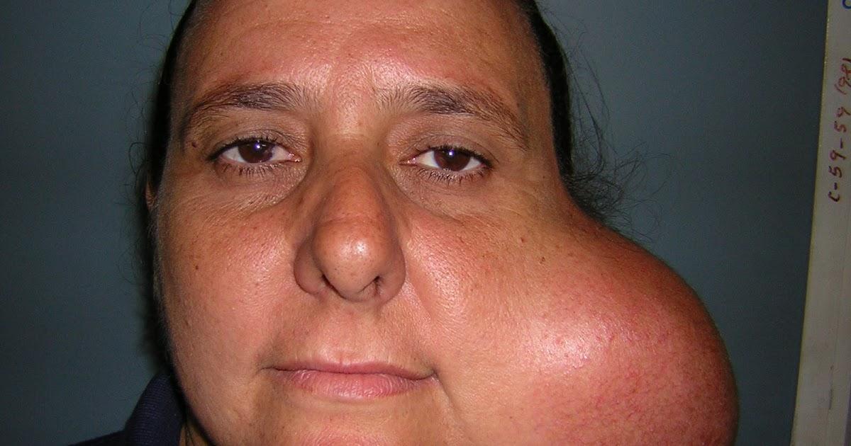 Cohen Cirugia Buco Maxilofacial: Resección de glandula submaxilar ...