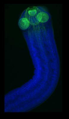 Hymenolepis microstoma
