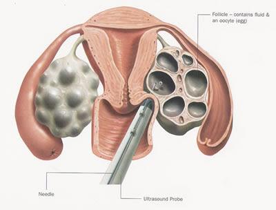 retrieving sperm from a corpse