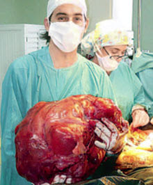 Surgeons remove a giant tumors from womans womb ~ Stranger World 