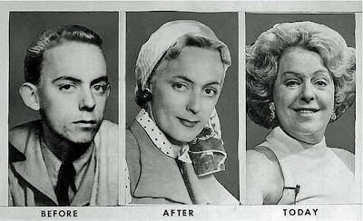 female sex change surgery