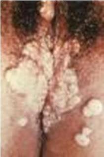 cara penularan penyakit sifilis