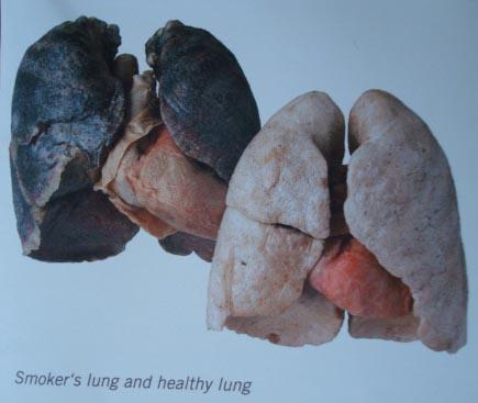 Perbandingan Antara Paru – paru Perokok & Bukan Perokok