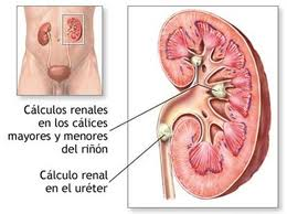 los calculos renales