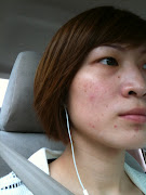 . the pimples have significantly reduced in redness and my skin looks .