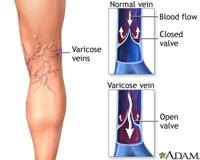 Come guarirà varicosity senza operazione