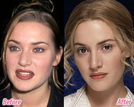 Here we provide you about plastic surgery before and after.