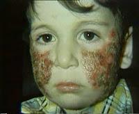 Çocukta Atopik Dermatit