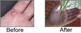 Warts Removal Read It At Rss2 Com