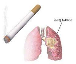 http://1.bp.blogspot.com/_Cp0wsI1U-0A/SVDixKRKOBI/AAAAAAAAAi8/VHa5Qhe0Xxw/s320/smoking-causes-lung-cancer.jpg