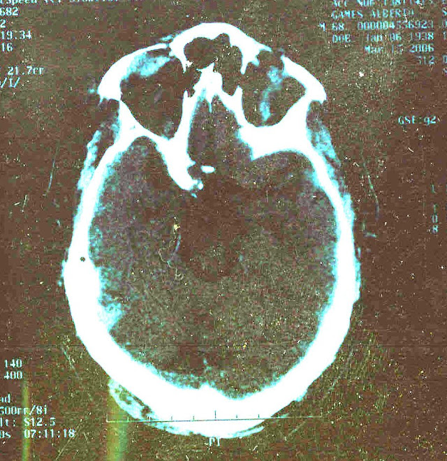Frontal Lobe Brain Damage