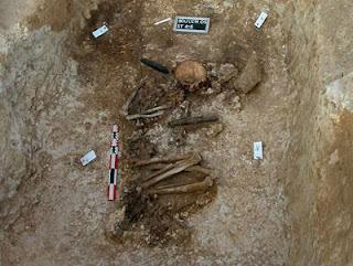 El esqueleto del individuo que sufrió la amputación. INRAP