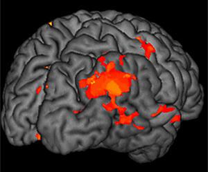 En busca de la inteligencia. Foto: Jan Gläscher | Caltech
