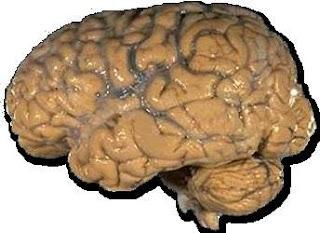 Los fibromiálgicos tiene más receptores del dolor