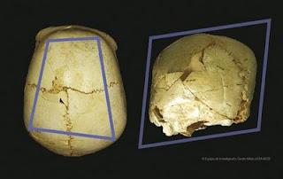 Identifican en Atapuerca un craneo con una rara enfermedad congenita