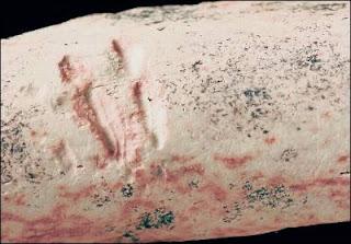 Marcas de un mordisco en el hueso de un dinosaurio. J. Longrich
