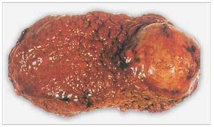christophers pancreas formula