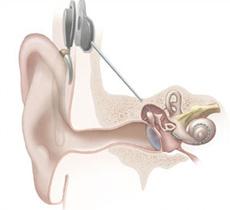parte interna y externa del implante coclear