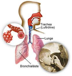 Natural Treatment For Asbestosis
