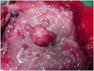 Cancro na Próstata