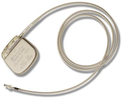 En pacemaker