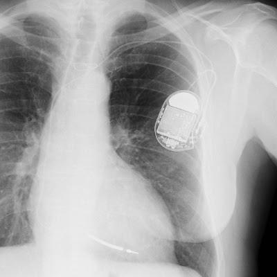 En pacemaker på et røngten-billede af brystet