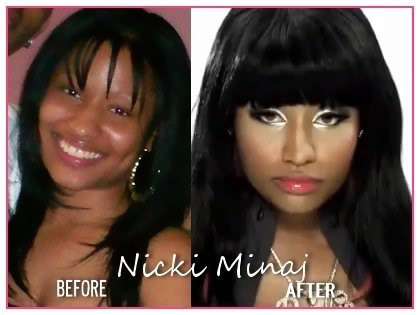 Can You Believe Nicki Minaj Use To Look Like This Likepage