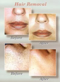 facial hair removal laser hair removal of miami