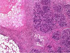 Necrosis grasa (peripancreática)