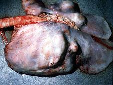 Neumonía purulenta