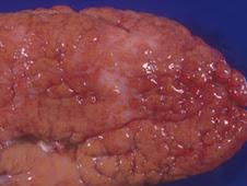 Nefroesclerosis (cerdo)