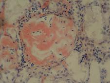 Amiloidosis cortical renal (Rojo congo)