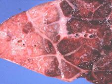 Neumonía fibrinosa