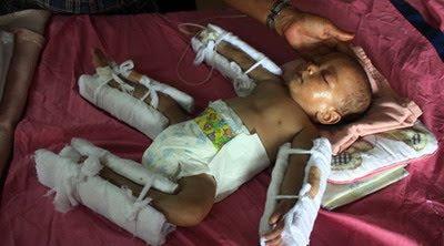 Foto Feri, Bayi Yang di Siksa Ibu Kandungnya Ternyata Seorang PSK dan Gila
